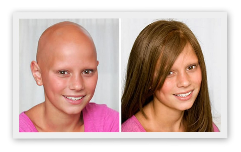 hair - loss -children